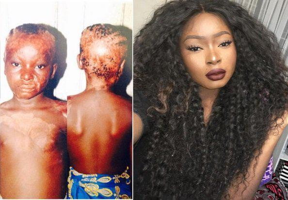 Страшная тайна девушки из Нигерии... Что скрывает 20-летняя красотка?