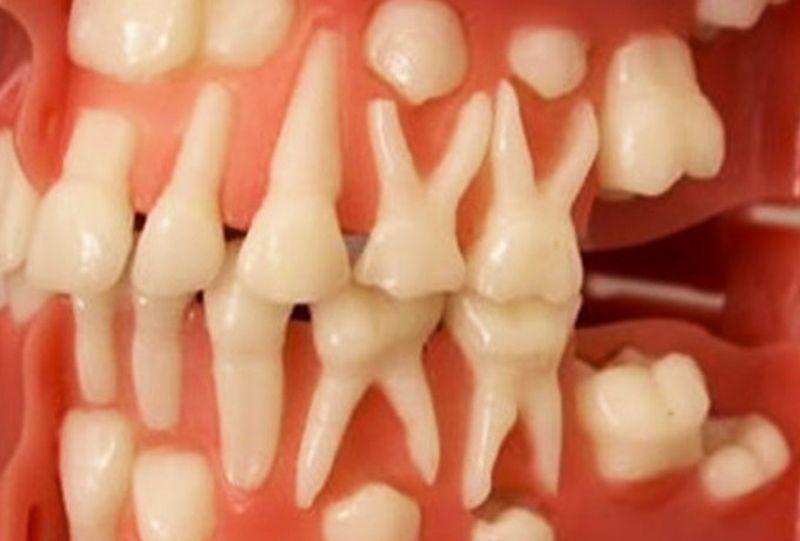 Зубы могут вырасти в любом возрасте - 9 недель и вы с новыми зубами!