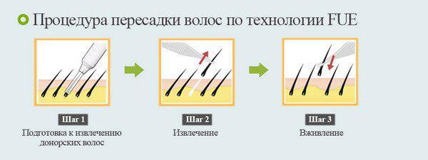 Советы врача-трихолога: как остановить выпадение волос! - 03