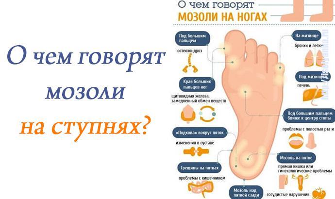О чем говорят мозоли на ступнях ног?   1