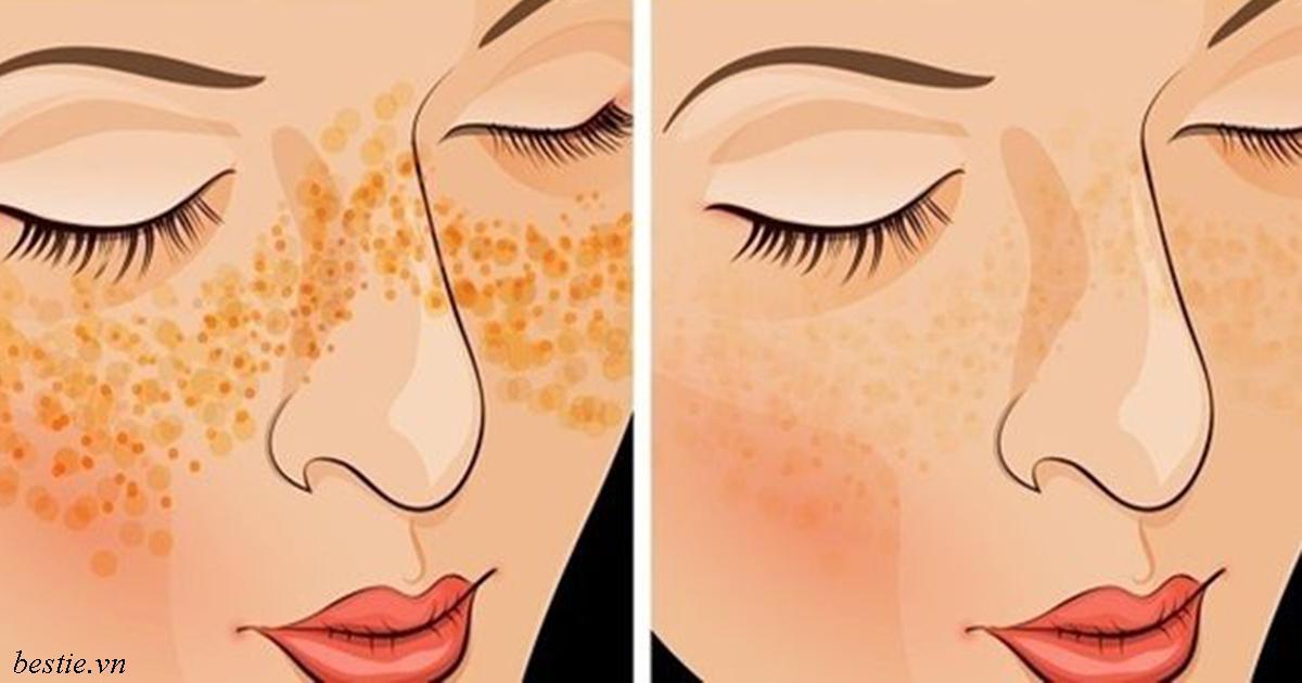 8 средств, чтобы избавиться от прыщей, шрамов и пигментных пятен на коже лица