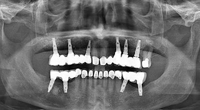 Панорамная рентгенография в имплантационной стоматологии