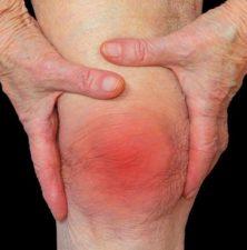 Артрит и суставы - взаимосвязь и профилактика | 1