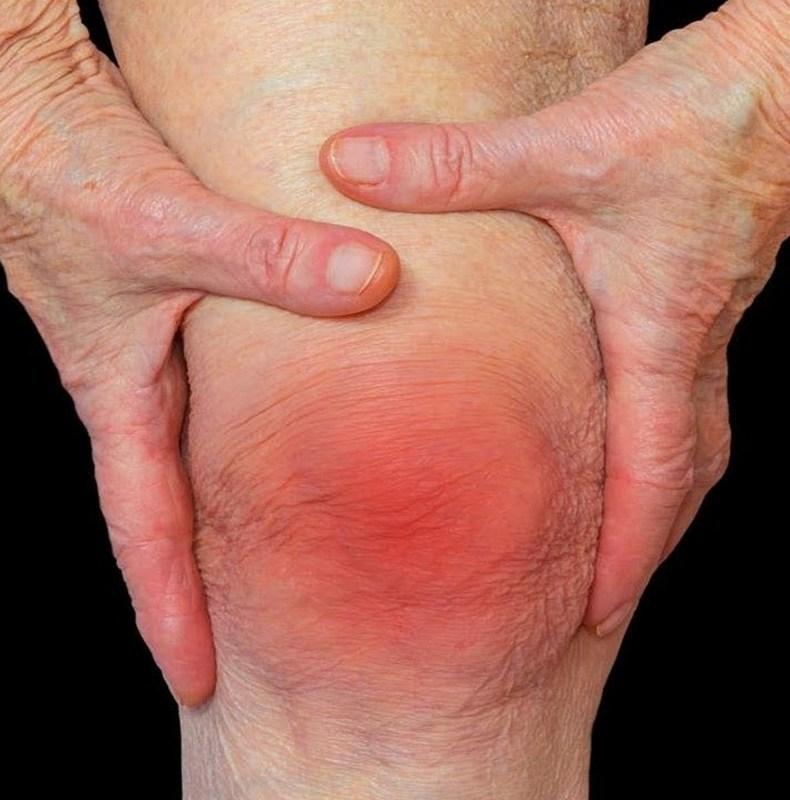 Артрит и суставы - взаимосвязь и профилактика | 16