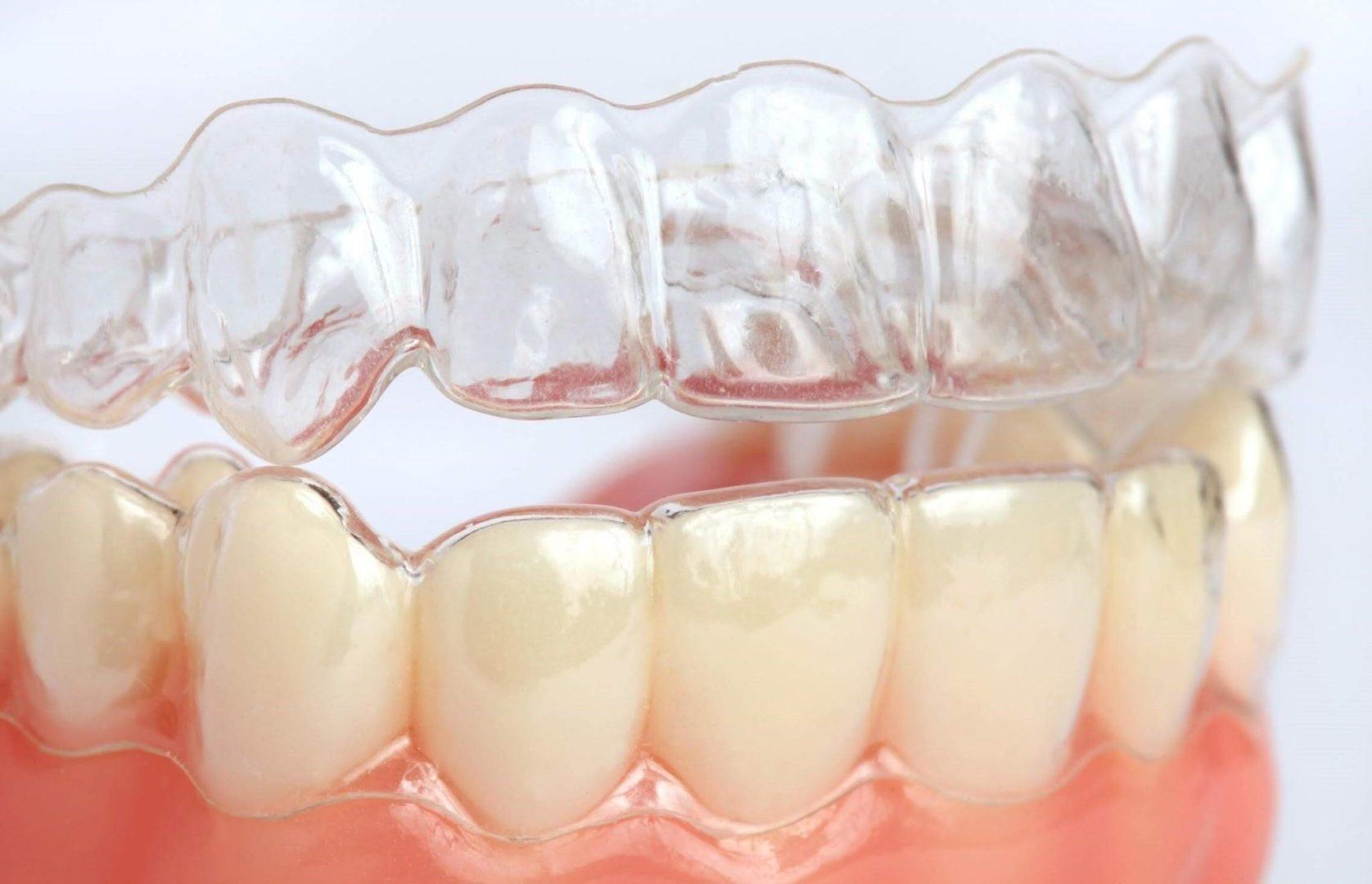Преимущества и недостатки кап для выравнивания зубов, этапы лечения | 9