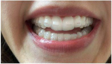 Преимущества и недостатки кап для выравнивания зубов, этапы лечения | 2