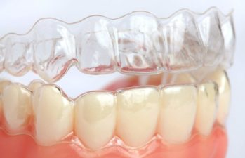 Преимущества и недостатки кап для выравнивания зубов, этапы лечения | 1